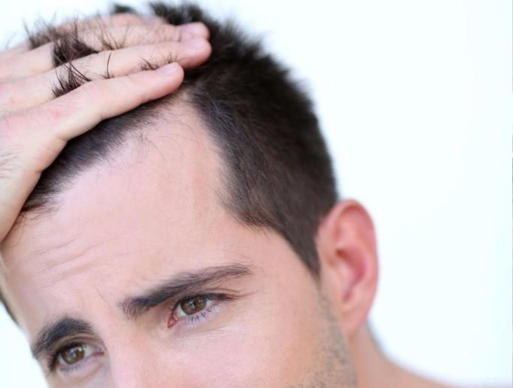 Hair Replacement Los Angeles CA
